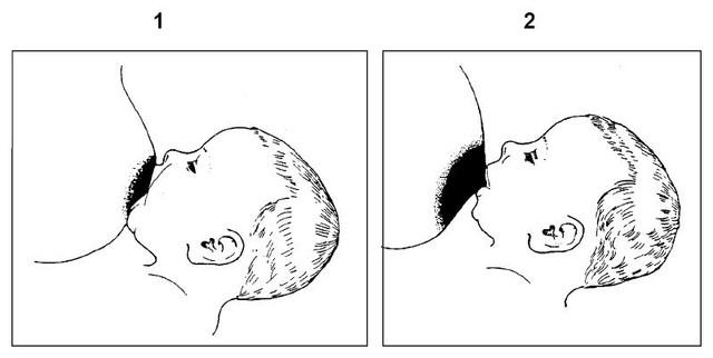 Сколько стоит сделать грудь Томск