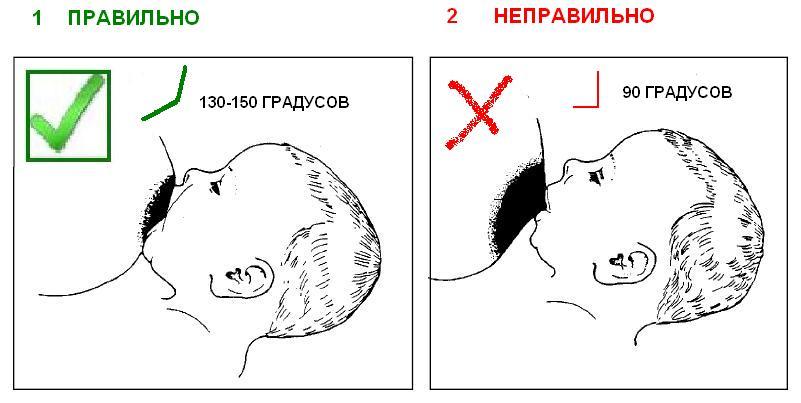 правильное и неправильное прикладывание к груди, правильный и неправильный захват